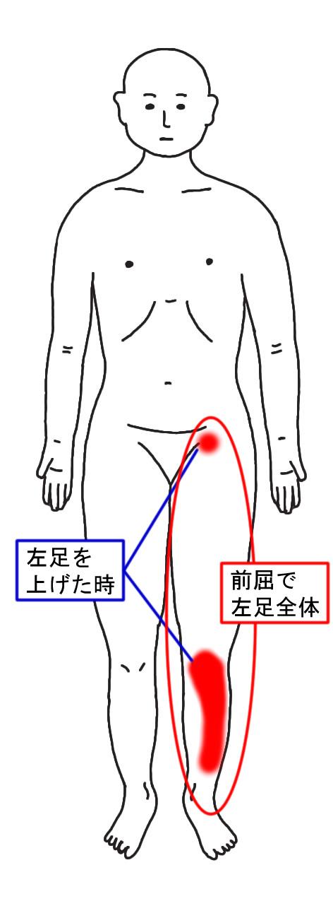 動きで発生する痛点の位置