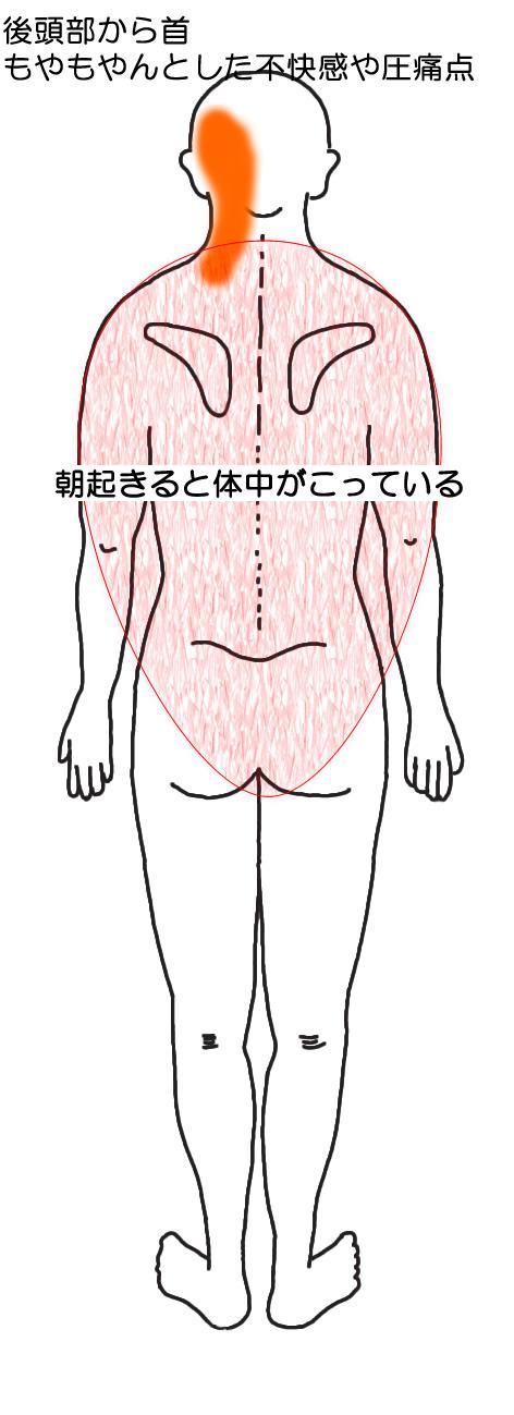 後頭部から首にもやもやんとした不快感と圧痛点。朝は体中のこりの図